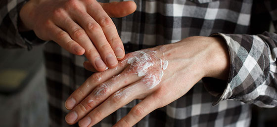 Use a thick, rich cream instead of a light lotion