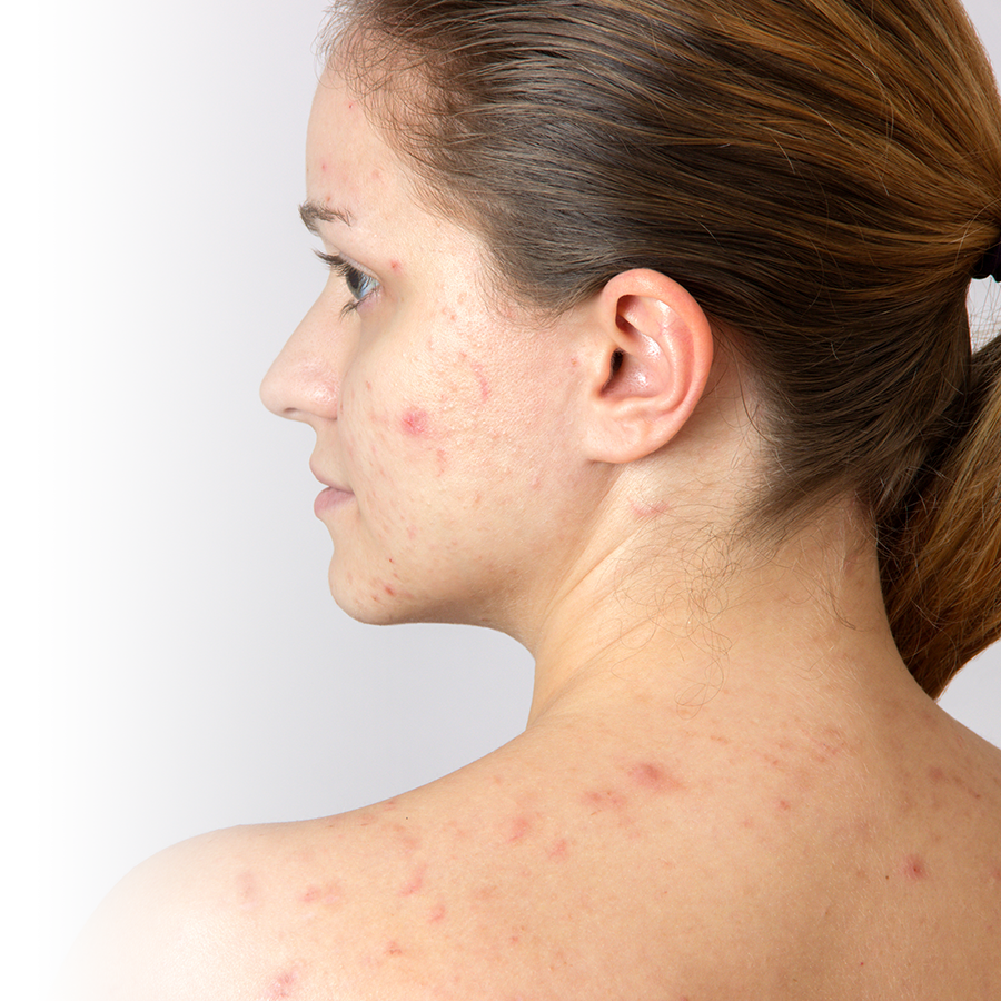 6 solutions to get rid of adult acne