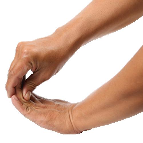 Arthrite psoriasique : vers plus de bien-être