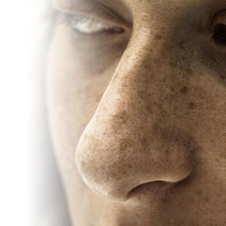 Les effets néfastes du soleil sur la peau et la santé