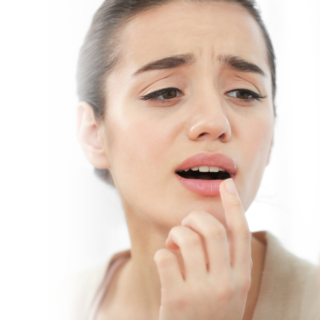 5 tips to avoid cold sores during the holidays