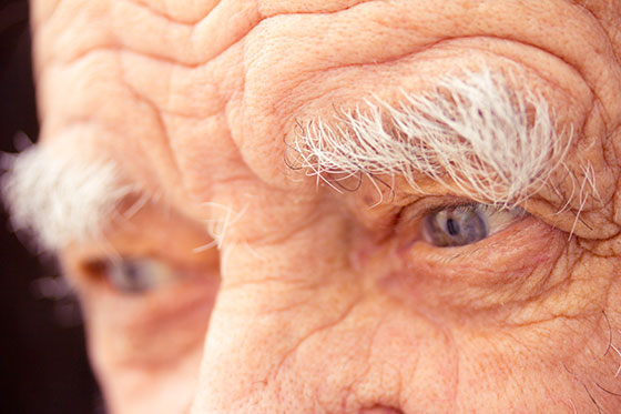 Alzheimer's disease: a sometimes troubling reality
