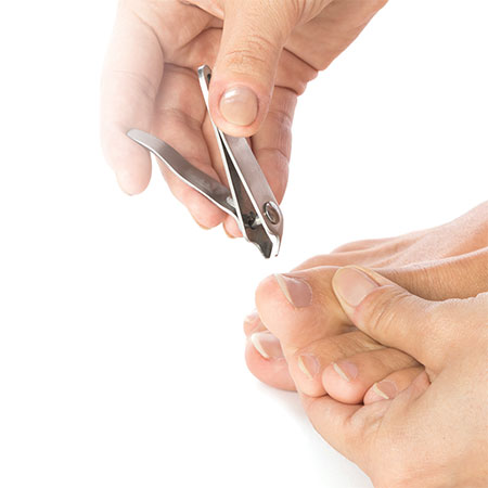 How to prevent and treat an ingrown nail