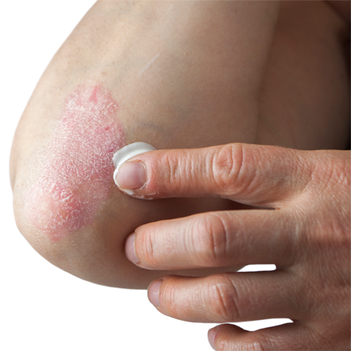 Overview on psoriasis