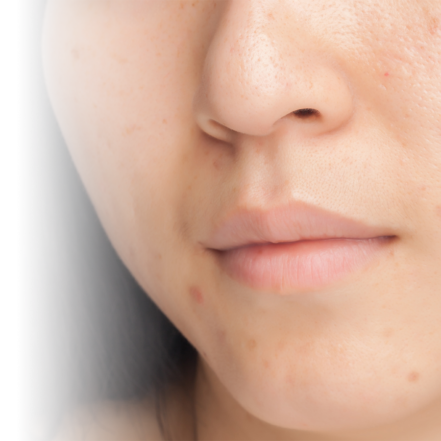 Myths and reality about acne